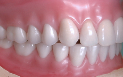 Cosmetic Dentures: What Are They