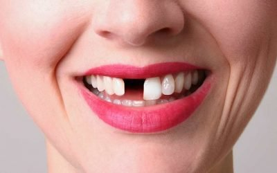 What Can You Do About Missing Teeth?