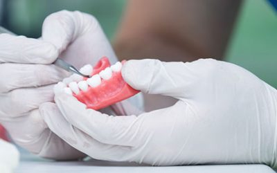 Are You in Need of Quality Same Day Denture Repairs?