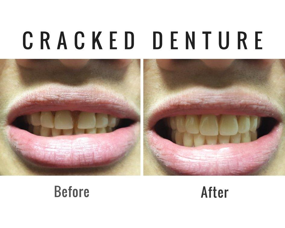 Cracked Denture
