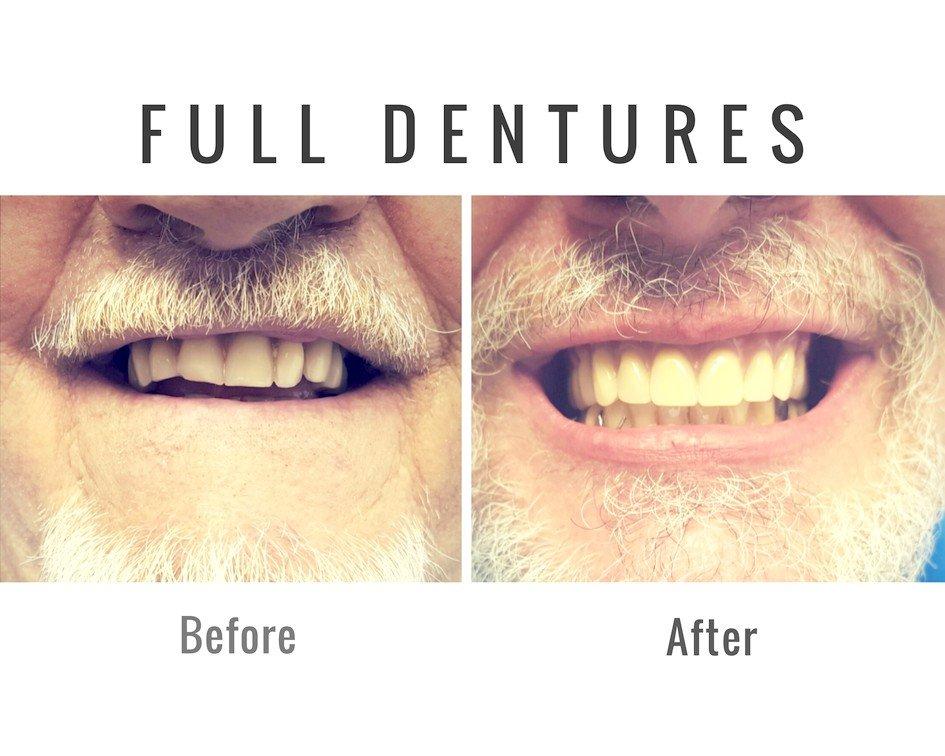DenturePatient Ottawa