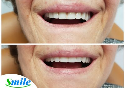Beautiful Smile Denture