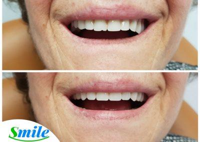 Beautiful Smile Denture