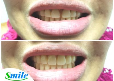Beautiful Upper Denture Patient