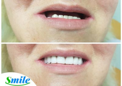 Denture Smile Makeover
