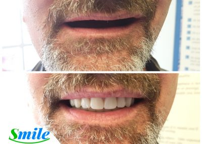Dentures Ottawa Natural Looking