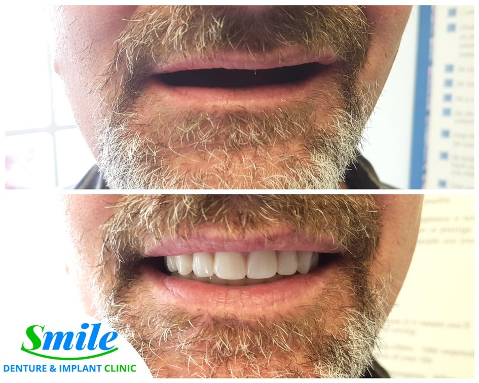 Denture Gallery of Satisfied Patients I Dentures and Dental