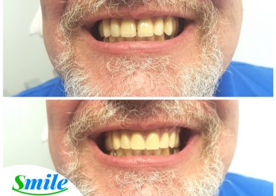 Smile Denture Patient Natural Looking Denture