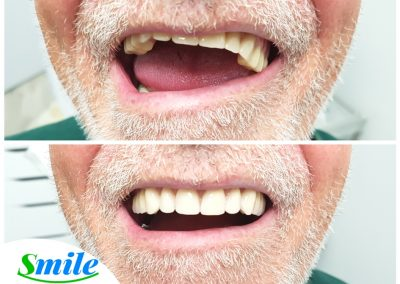 Upper Denture Patient Smile