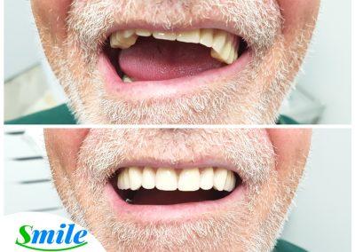 Upper Denture Patient Smile