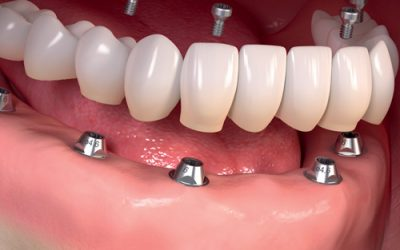 3 Major Benefits of Dentures on Implants