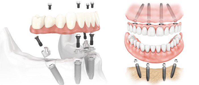 All on four denture implants