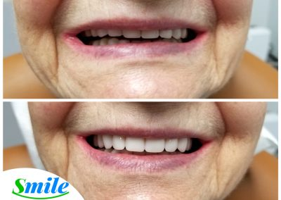 Beautiful Denture Smile Transformation