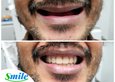 Beautiful Upper Denture Happy Patient