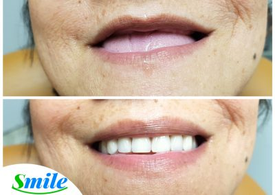 Beautiful Upper Denture Patient