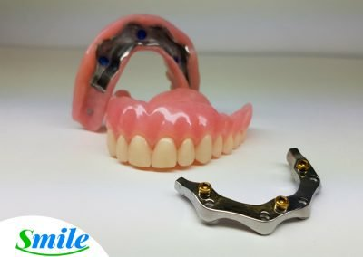 Denture Implants Ottawa