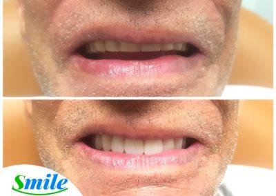 Denture Patient Smile