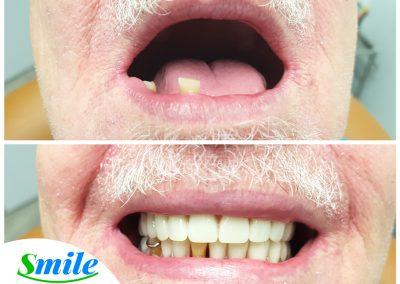 Upper Denture Patient