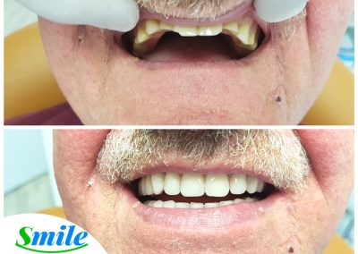 Upper Denture Patient - Smile
