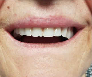 close up of a patient with crooked dentures