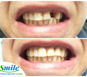 before and after photo of a patient who got a dental implant