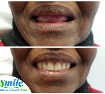 before and after photo of a woman who got complete dentures