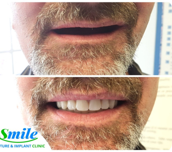 before and after photo of a man who got complete dentures