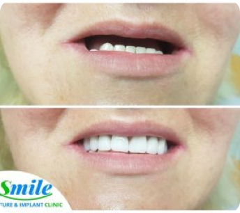 before and after photo of complete upper dentures
