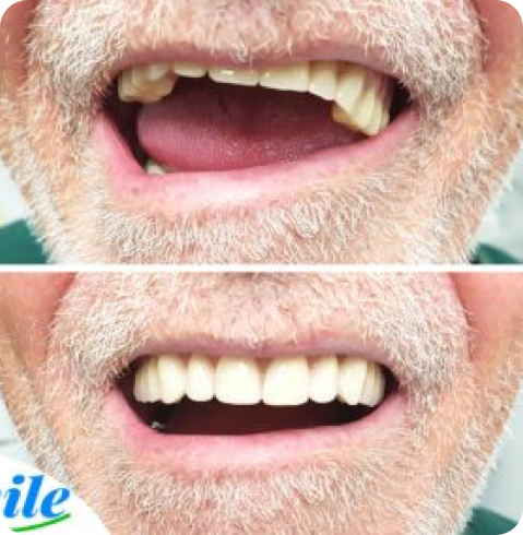 before and after photo of a denture rebase.