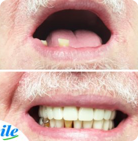 before and after photo of complete dentures