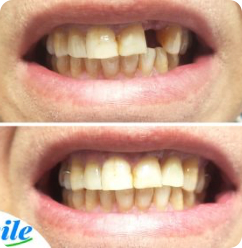 before and after photo of a dental implant