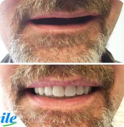 before and after photo of a patient with complete dentures