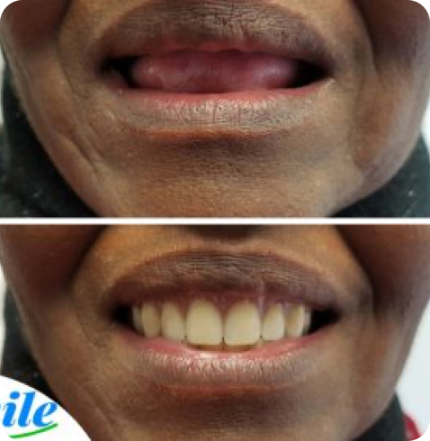before and after photo of a woman with complete dentures