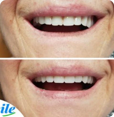 before and after photo of a denture rebase